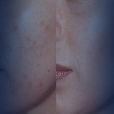 "<a href=""http://www.epibeauty.com/ar/sivilce-akne-tedavisi"">علاج الحبوب وحب الشباب</a>"