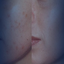 "<a href=""http://www.epibeauty.com/en/acne-treatment/"">Acne Treatment</a>"