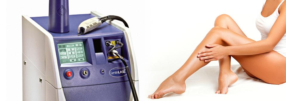 bacak-lazer-epilasyonu
